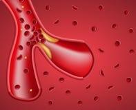 Realistisch Schip en Atherosclerotic Plaquebanner vector illustratie
