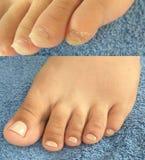 Realistische Pediküre, Fußpflege: vorher und nachher lizenzfreie stockfotos