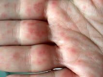 Realistischer Coxsackie-Virushautausschlag auf Händen stockfotos