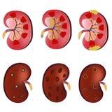realistisk för vektoruppsättning för anatomi 3D njure, normal njure, njureinfektion, sjuk njure Anatomimänniska stetoskop för pen stock illustrationer
