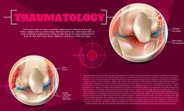 Realistisk illustrationTraumatologymedicin i 3d royaltyfri illustrationer