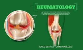 Realistiskt knä för illustration 3d med sönderrivna Miniscus royaltyfri illustrationer