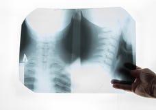 Realizar do radiologista em seu raio X da mão imagem de stock