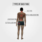 Rear view of a young male figure with red circles sore points. Royalty Free Stock Photos