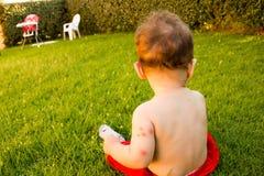 Recém-nascido com mordidas de mosquito múltiplas Alergia às mordidas de inseto Fotografia de Stock