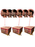 Receding Hairline Balding Losing Hair Stock Image