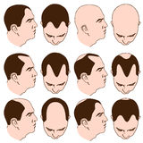 Receding Hairlines Royalty Free Stock Image