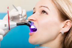 The reception was at the female dentist. Doctor examines the oral cavity on tooth decay. Caries protection. Tooth decay. Treatment. Dentist working with dental Royalty Free Stock Photos