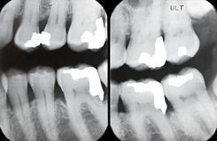 Rechte periodontale Röntgenstrahlen Stockfotografie