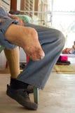 Rechter Fuß einer Lepra Stockbild