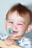 Recién nacido con el ojo rojo Fotos de archivo libres de regalías