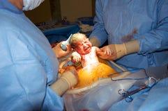 Recién nacido durante la sección cesariana Imagen de archivo