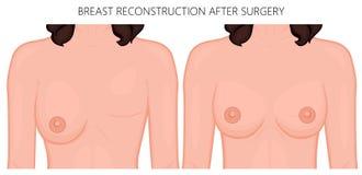 Reconstruction en plastique de surgery_Breast après chirurgie illustration libre de droits