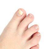 Reconstruction nail Royalty Free Stock Photos