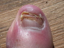 Recouperating  toenail Royalty Free Stock Images
