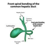 Recourbement en spirale avant du conduit hépatique commun Pathologie de la vésicule biliaire illustration libre de droits