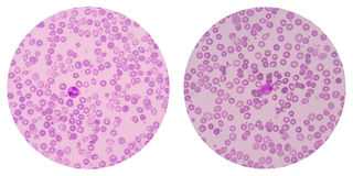 Red blood cells on white Stock Image