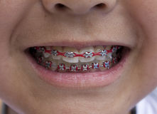 Red Braces Stock Photos