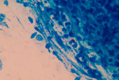 Red cells microbacterium tuberculosis. On blue background medical science Stock Images