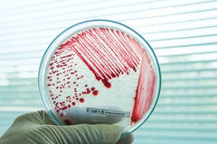 Red colony of bacteria. In petridish with laboratory test Stock Photos