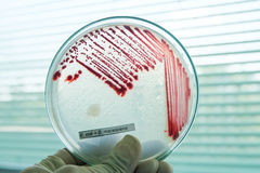 Red colony of bacteria. In petridish with laboratory test Royalty Free Stock Images