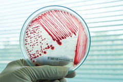Red colony of bacteria. In petridish with laboratory test Royalty Free Stock Photo