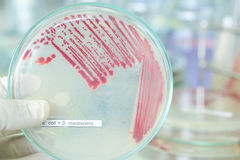 Red colony of bacteria. In petridish with laboratory test Royalty Free Stock Photos