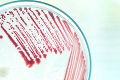 Red colony of bacteria. In petridish with laboratory test Stock Images