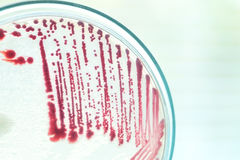 Red colony of bacteria. In petridish with laboratory test Stock Photography