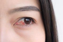 Red eye. conjunctivitis or irritation of sensitive eyes. Red eye. conjunctivitis or irritation of sensitive eyes stock photos