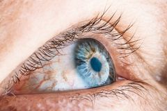 Red female blue eye close up macro photo. Swollen eyelids, foreign body pain Royalty Free Stock Images