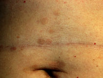Red Flat Lichen planus. Red spots on the skin of the abdomen.  stock photo