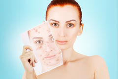 Red haired model releases her sjin from blemishes. Red haired female model releases her sjin from blemishes Stock Photos