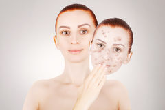 Red haired model releases her sjin from blemishes Stock Photography