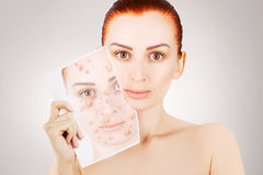 Red haired model releases her sjin from blemishes Stock Image