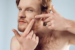 Red haired young man squeeze out pimple on cheek. stock images