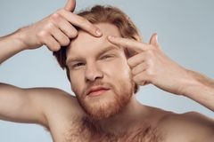 Red haired young man squeeze out pimple. On forehead. Male hygiene. Morning hygiene procedures. Isolated on grey background. Studio portrait. Acne. Skin care royalty free stock photos