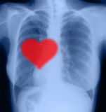 Red heart on x-ray Stock Image
