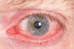 Red human eye. Close up of wide open red and irritated human eye stock photo