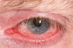 Red irritated eye. Half closed red and irritated eye with blood vessels stock photo