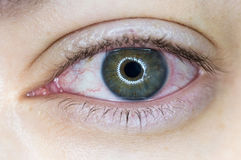 Red Irritated Human Eye. Left eye with an infection on the cornea stock photography
