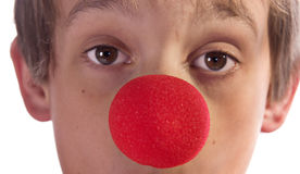 Red nose. Close up of a boys face with red nose Royalty Free Stock Images