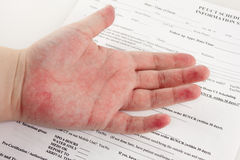 Red Rash On Hand royalty free stock photography