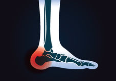 Red signal at heel area. This illustration about human foot injury Stock Photos
