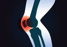 Red signal at knee area. This illustration about human leg injury Royalty Free Stock Photo