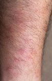 Red Sore Mosquito Bites on Leg. Many mosquito bites on the leg of a caucasian male Royalty Free Stock Image