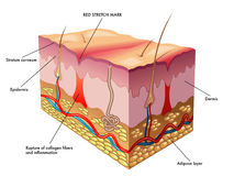 Red stretch mark. Medical illustration of the process of formation of red stretch marks Stock Image