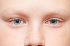 Red tired eyes in a child. After a long game in computer Stock Image
