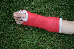 Red wrist arm and hand cast Royalty Free Stock Image