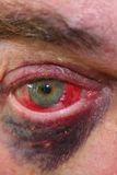 Reddened eyeball and black eye Stock Photo